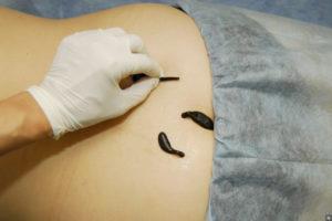 показания к гирудотерапии