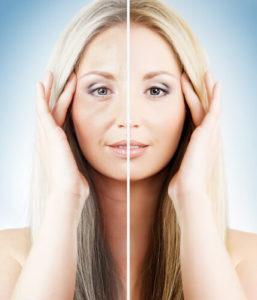 Косметологический эффект инъекционного омоложения