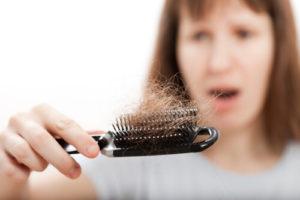 Выпадение волос — алопеция