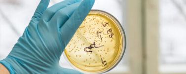Лечение cтафилококковой инфекции