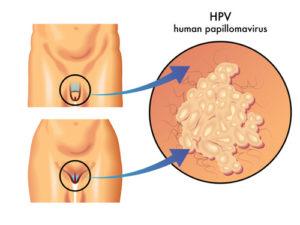 Удаление кондилом - вирусных образований в диамед