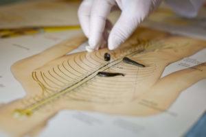 противопоказания гирудотерапии
