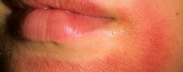 Лечение аллергодерматоза в диамед