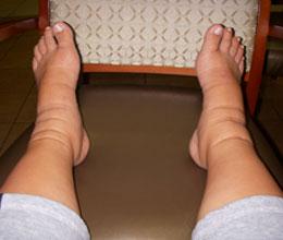 Симптомы амилоидоза почек