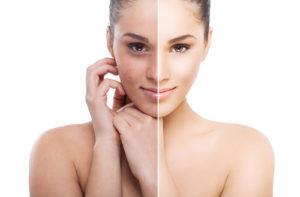 Пилинг в косметологической клинике