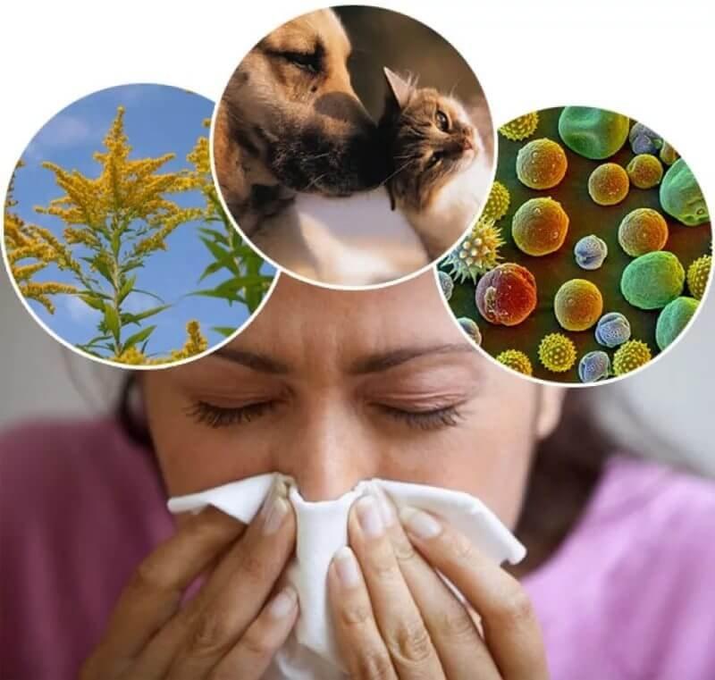 Консультация аллерголога в Митино