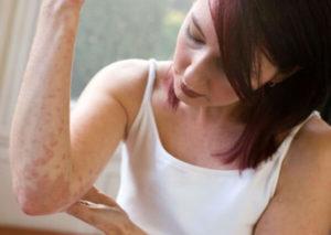Лечение дерматита, псориаза у взрослых
