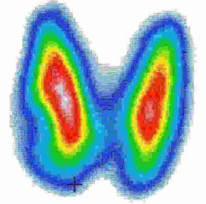 Диагностика опухолей щитовидной железы с помощью ртм
