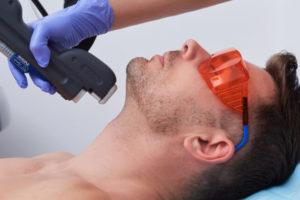Как делают лазерную эпиляцию лица?