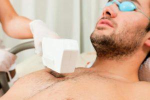 Виды лазерной эпиляции для мужчин
