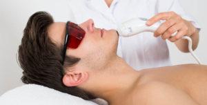Лазерная эпиляция для мужчин в москве