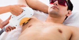 лазерная эпиляция для мужчин СВАО в Москве