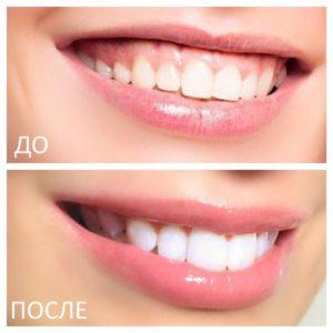 коррекция десневой улыбки в салоне в Москве