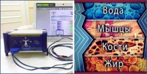 Что такое биоимпедансный анализ тела