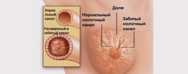 причины появления лактостаза